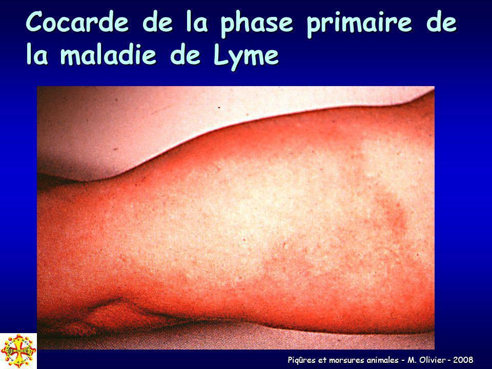 Cocarde de la phase primaire de la maladie de Lyme