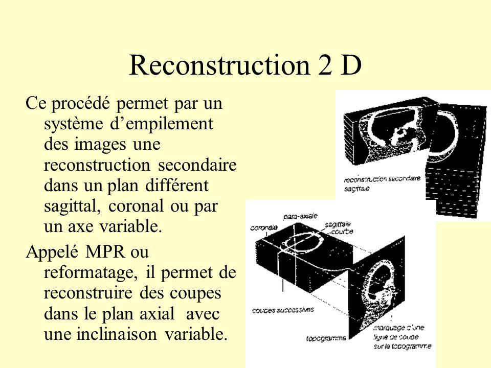 Reconstruction 2 D