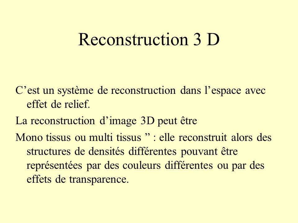 Reconstruction 3 D C'est un système de reconstruction dans l'espace avec effet de relief. La reconstruction d'image 3D peut être.