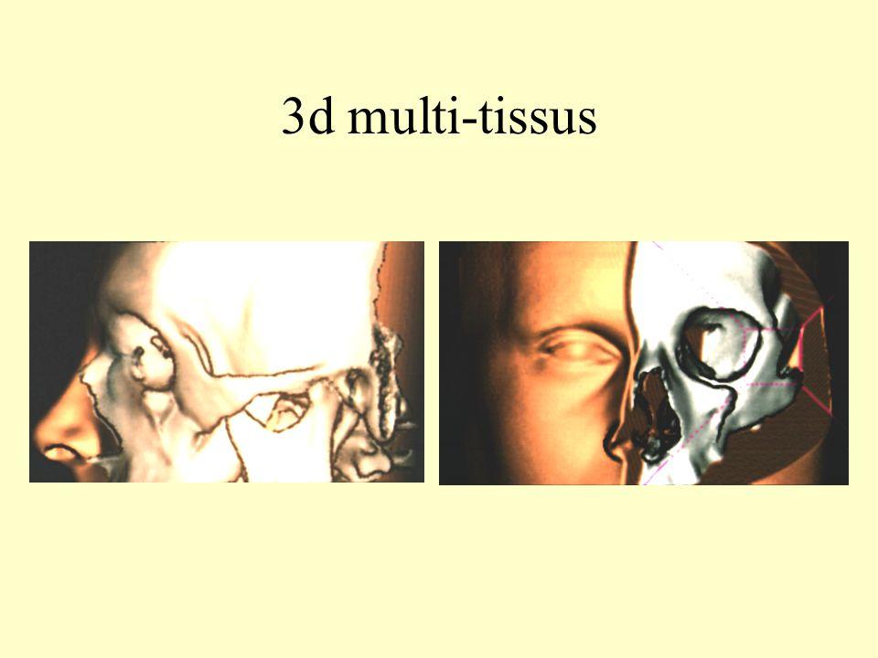 3d multi-tissus