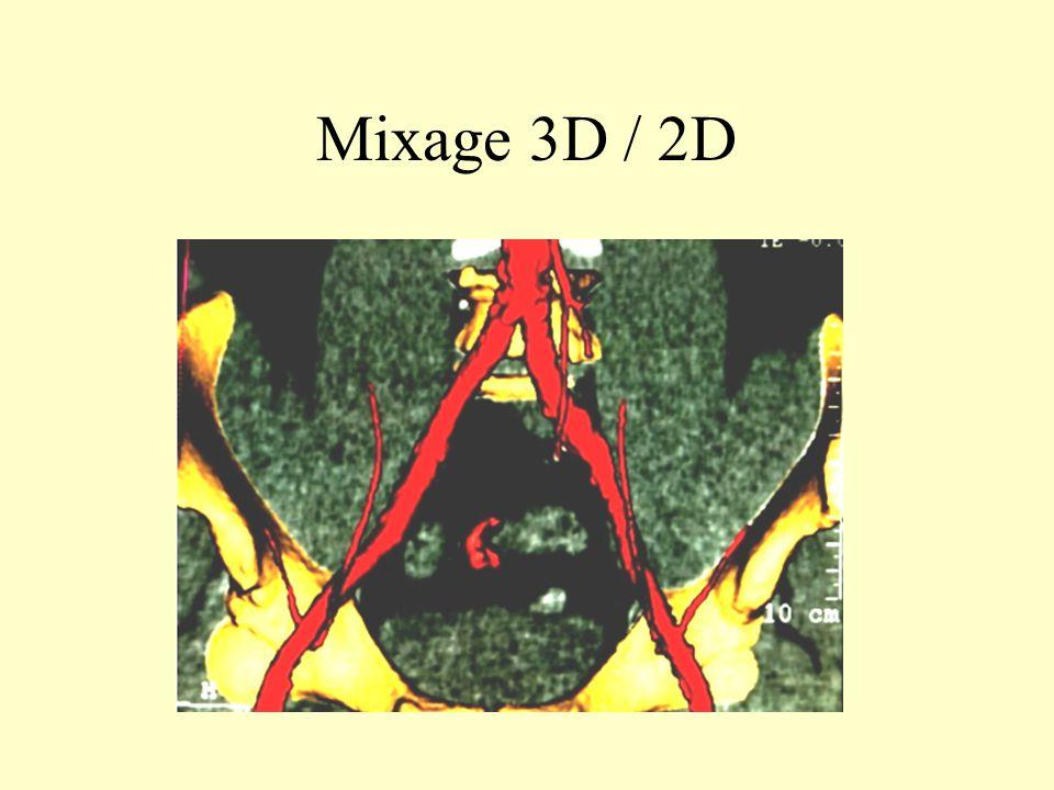 Mixage 3D / 2D