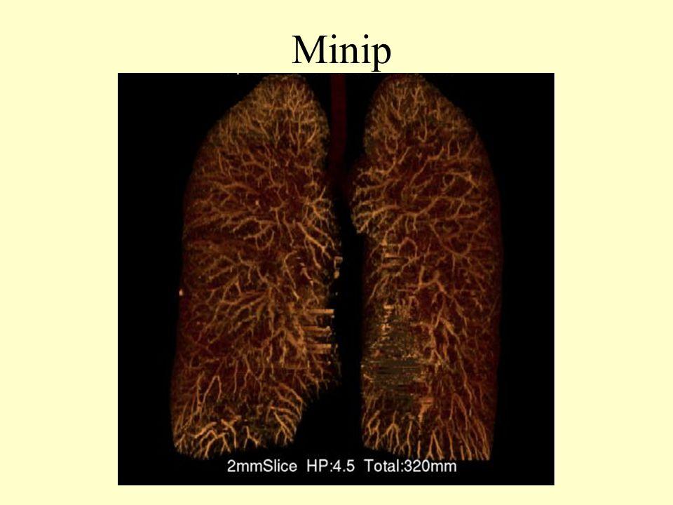 Minip