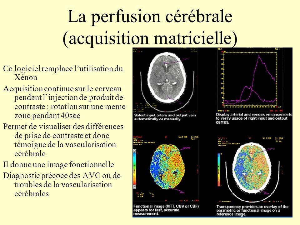 La perfusion cérébrale (acquisition matricielle)