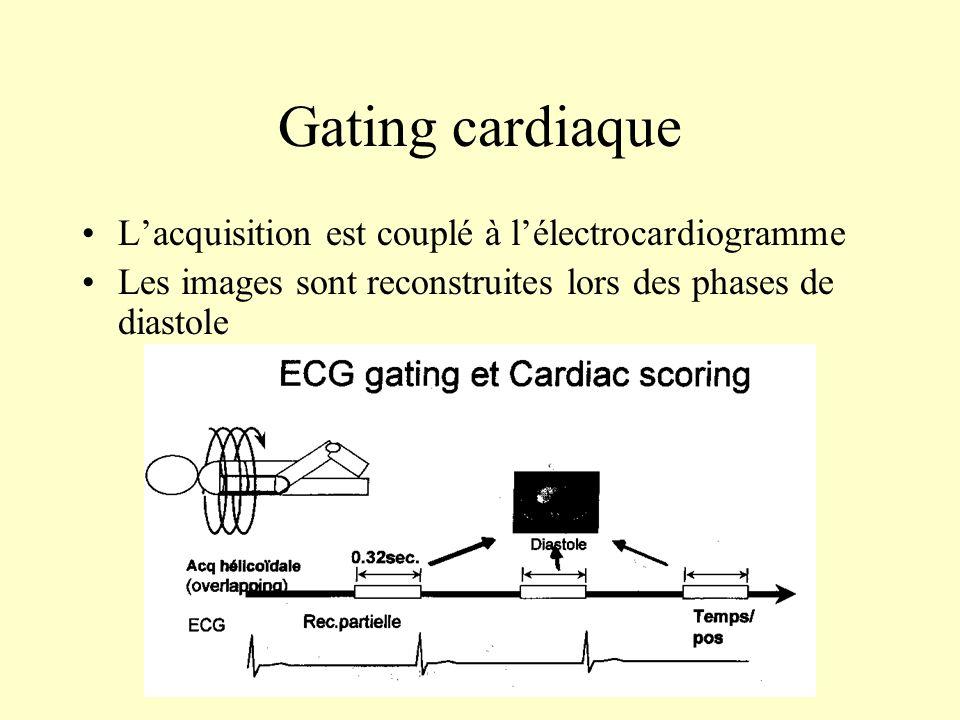 Gating cardiaque L'acquisition est couplé à l'électrocardiogramme