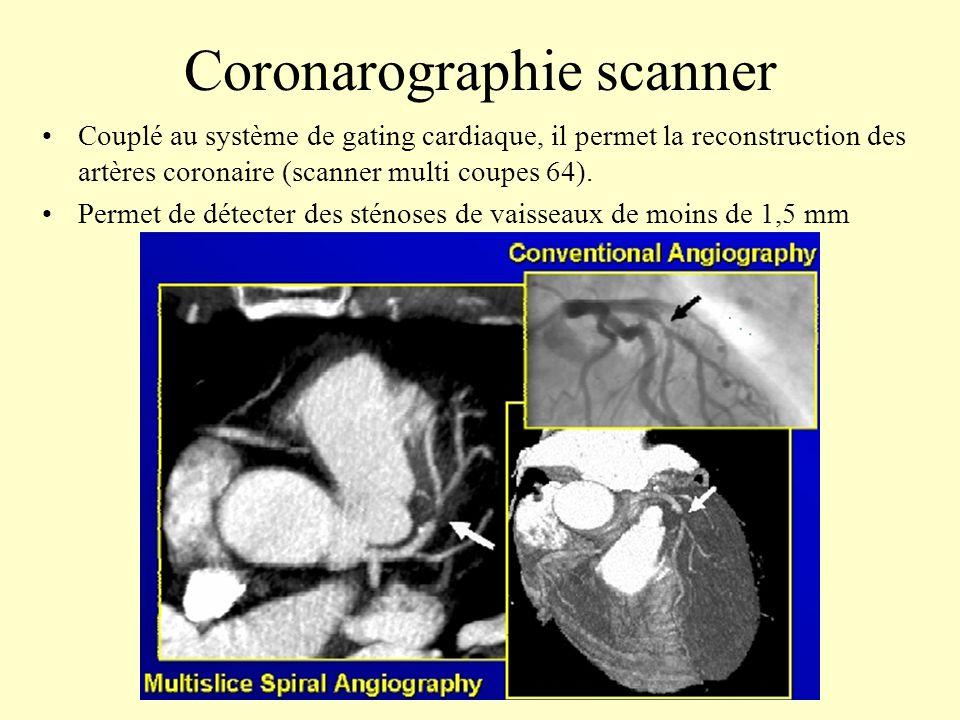 Coronarographie scanner