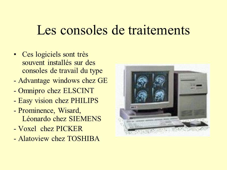 Les consoles de traitements