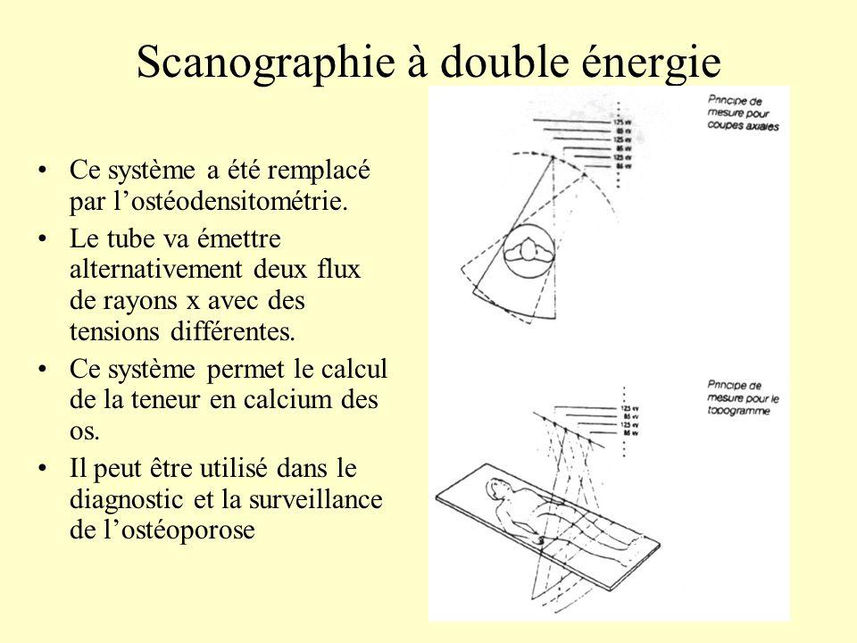 Scanographie à double énergie