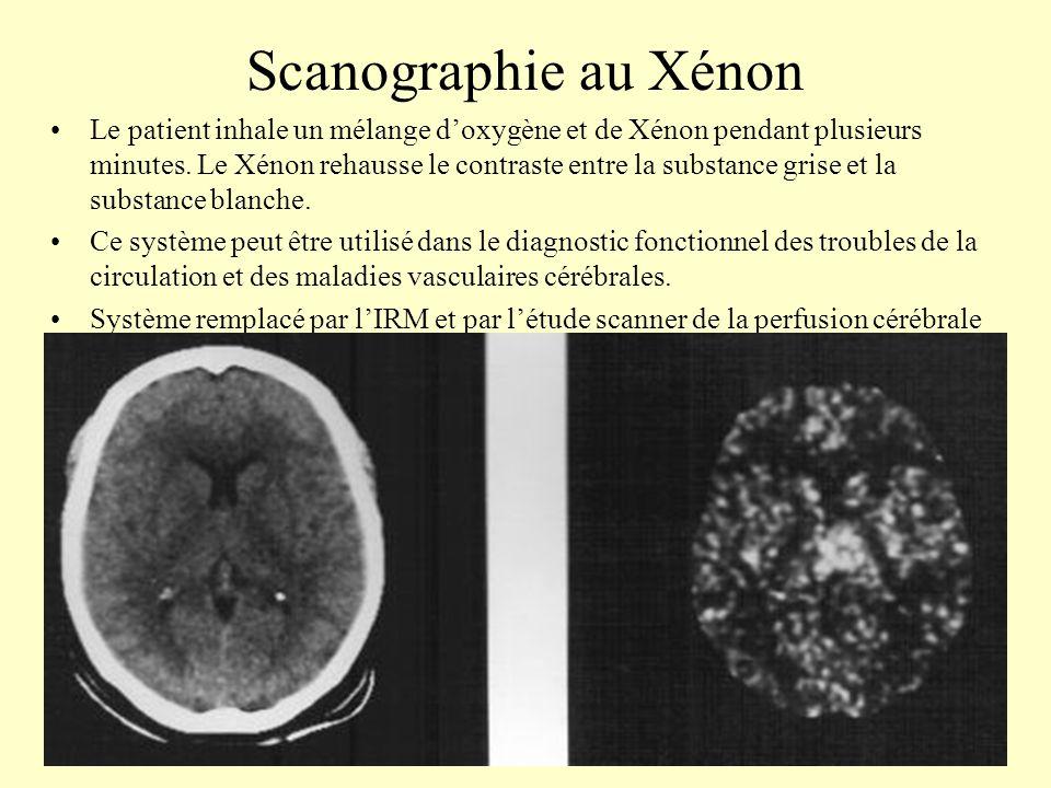 Scanographie au Xénon