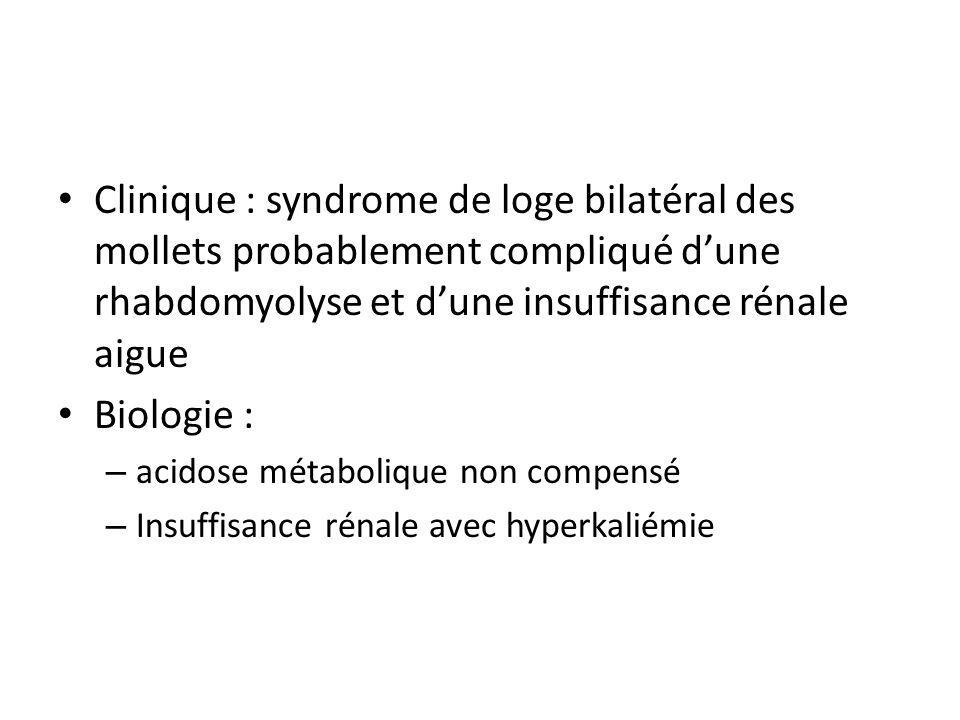 Clinique : syndrome de loge bilatéral des mollets probablement compliqué d'une rhabdomyolyse et d'une insuffisance rénale aigue