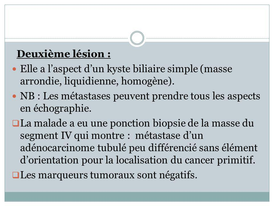 Deuxième lésion : Elle a l'aspect d'un kyste biliaire simple (masse arrondie, liquidienne, homogène).