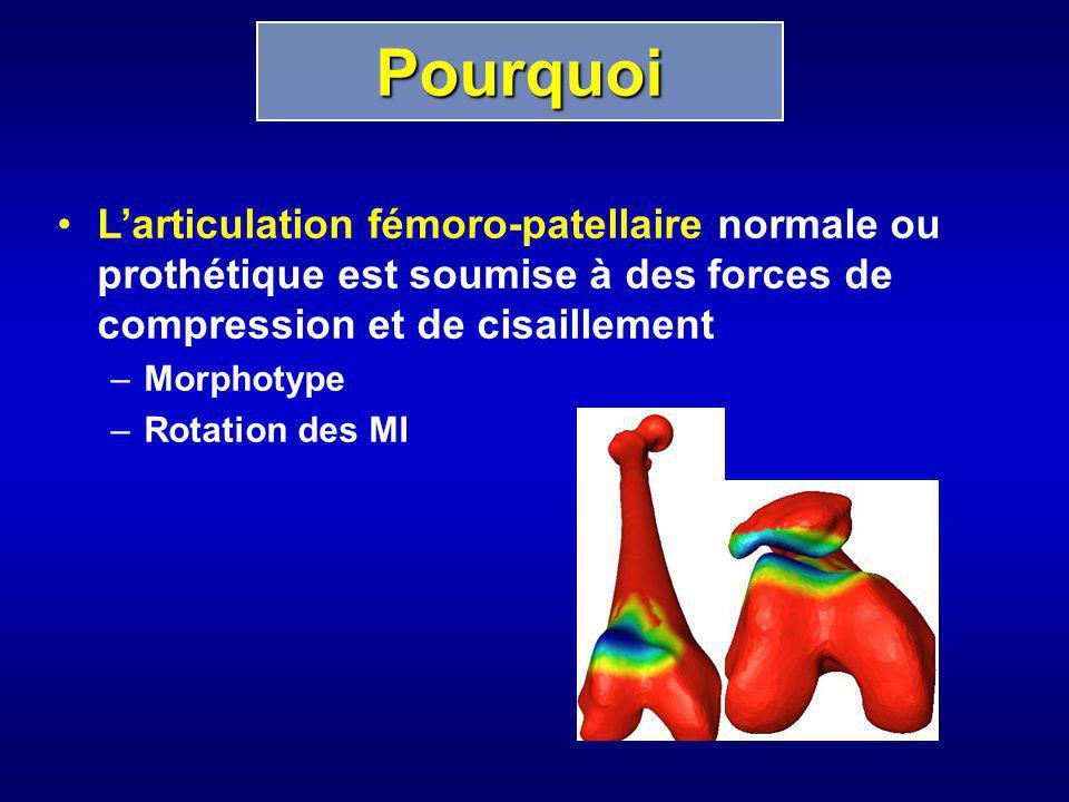 Pourquoi L'articulation fémoro-patellaire normale ou prothétique est soumise à des forces de compression et de cisaillement.