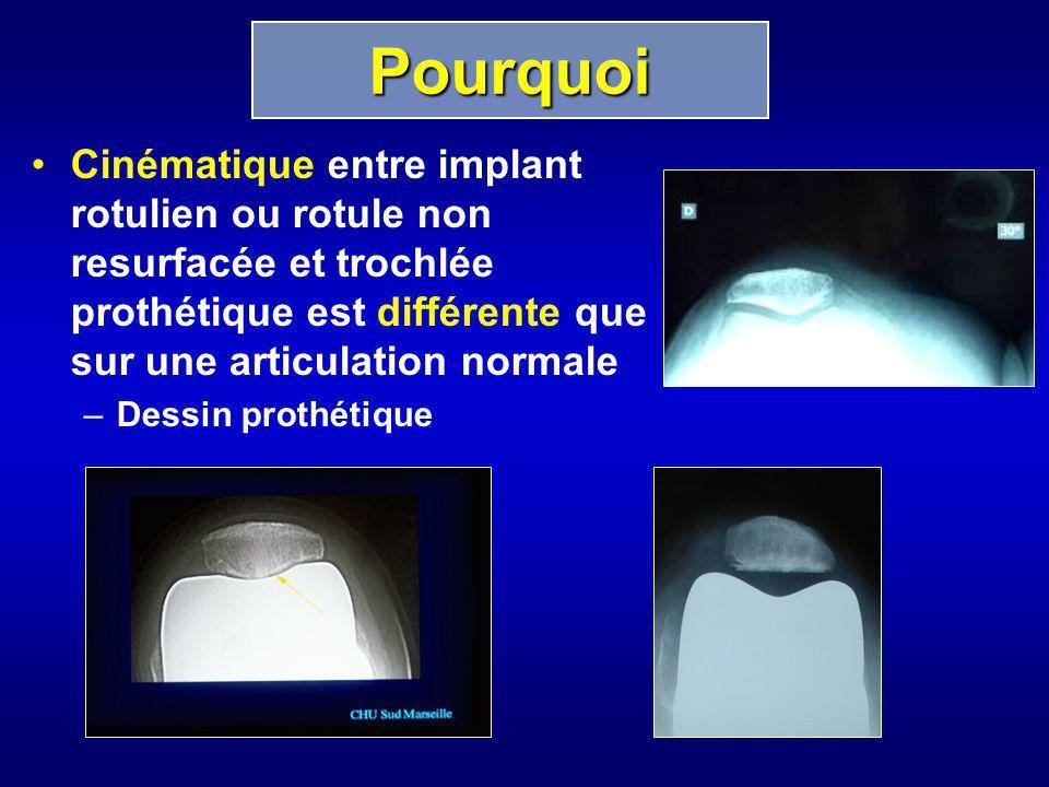 Pourquoi Cinématique entre implant rotulien ou rotule non resurfacée et trochlée prothétique est différente que sur une articulation normale.