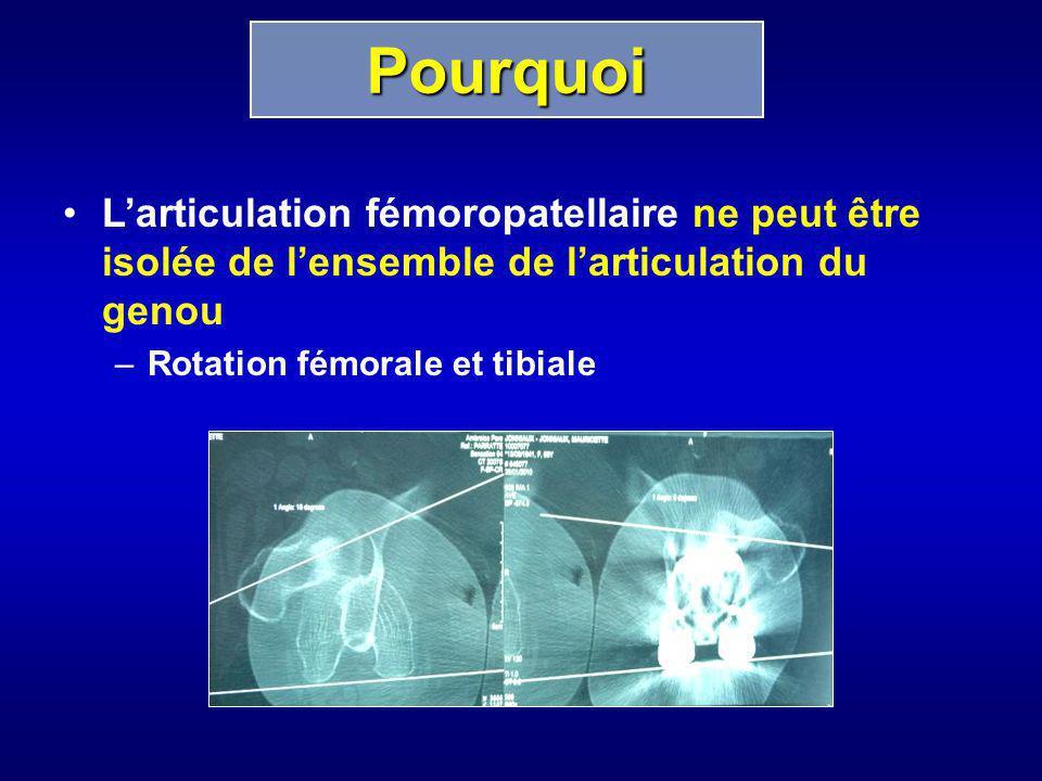 Pourquoi L'articulation fémoropatellaire ne peut être isolée de l'ensemble de l'articulation du genou.