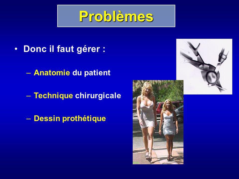 Problèmes Donc il faut gérer : Anatomie du patient