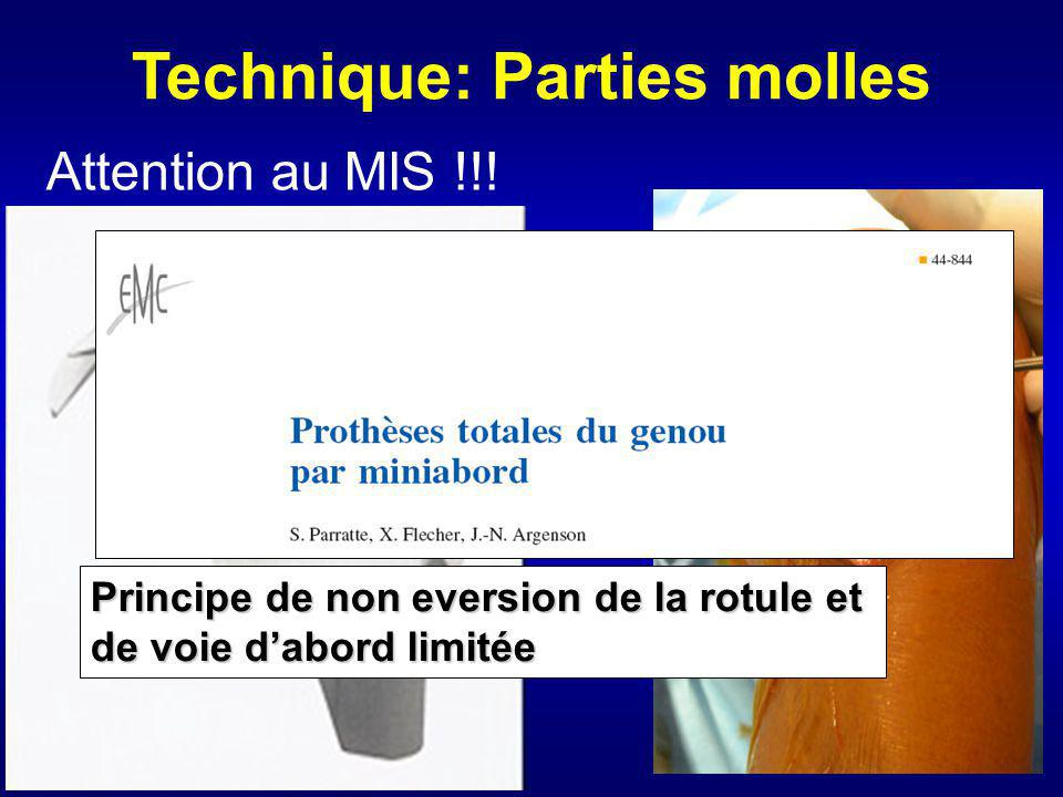 Technique: Parties molles