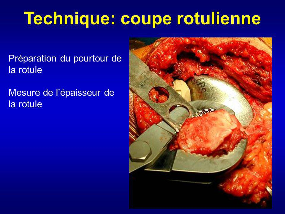 Technique: coupe rotulienne