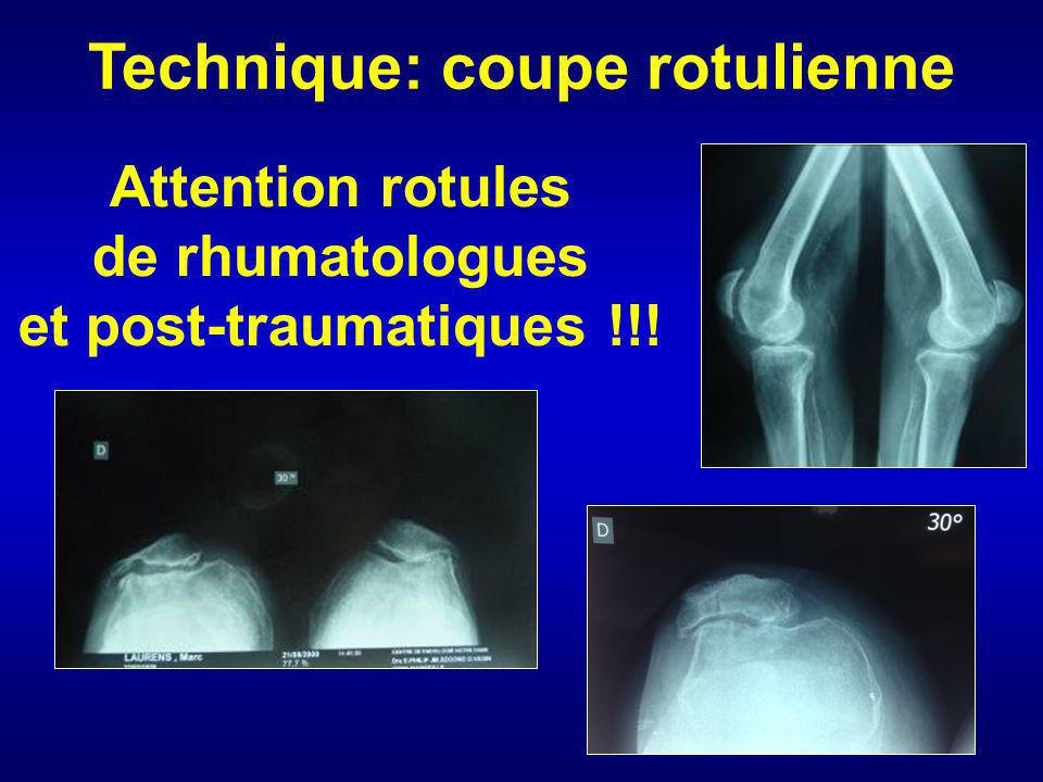 Attention rotules de rhumatologues et post-traumatiques !!!