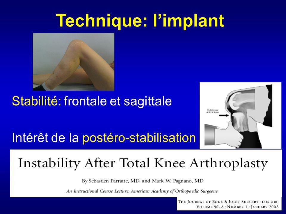 Technique: l'implant Stabilité: frontale et sagittale Intérêt de la postéro-stabilisation