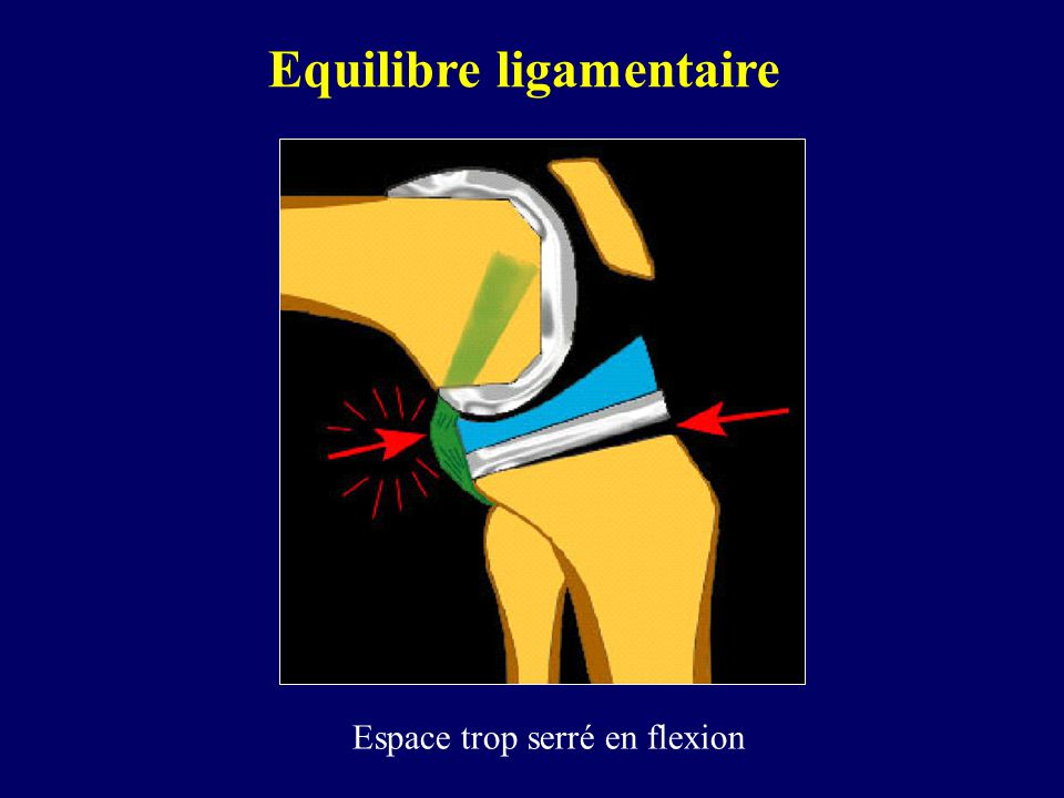 Equilibre ligamentaire