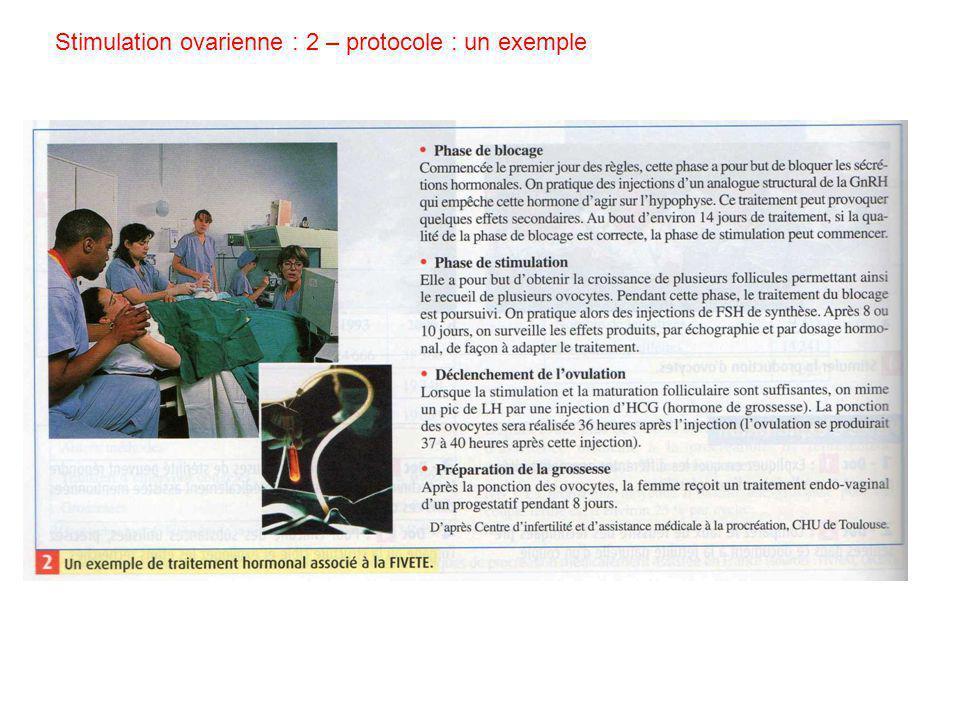 Stimulation ovarienne : 2 – protocole : un exemple