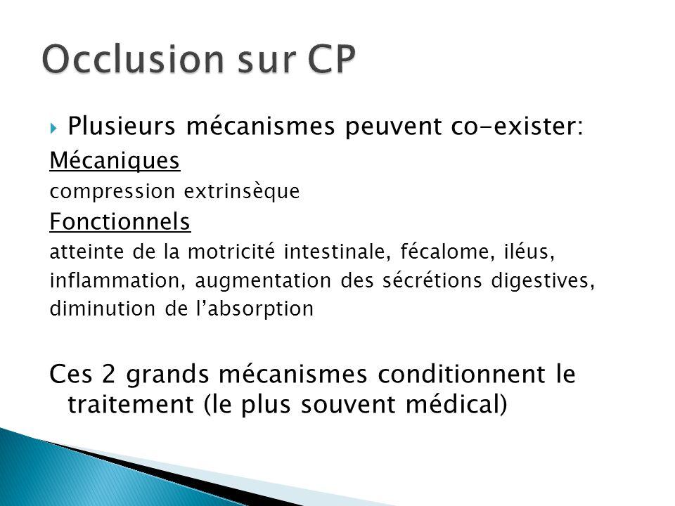 Occlusion sur CP Plusieurs mécanismes peuvent co-exister:
