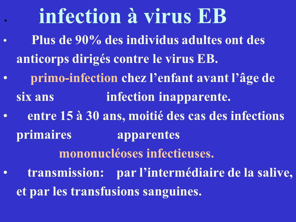 anticorps dirigés contre le virus EB.