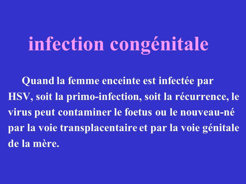 infection congénitale