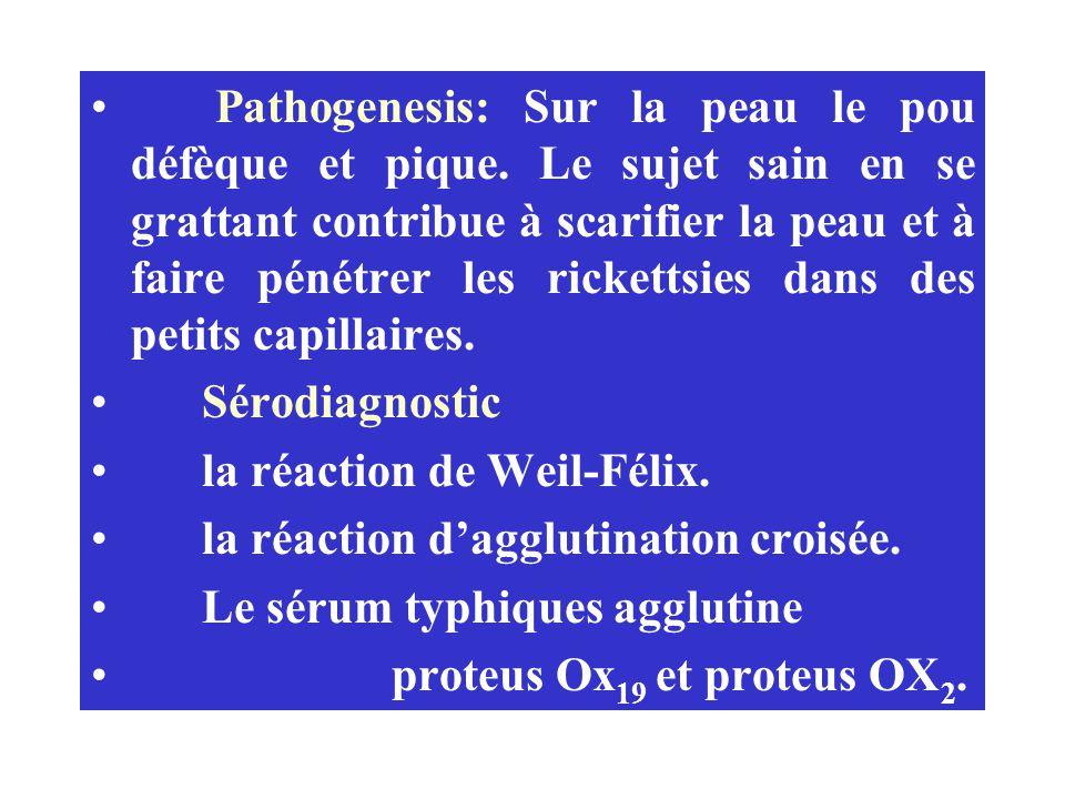 Pathogenesis: Sur la peau le pou défèque et pique