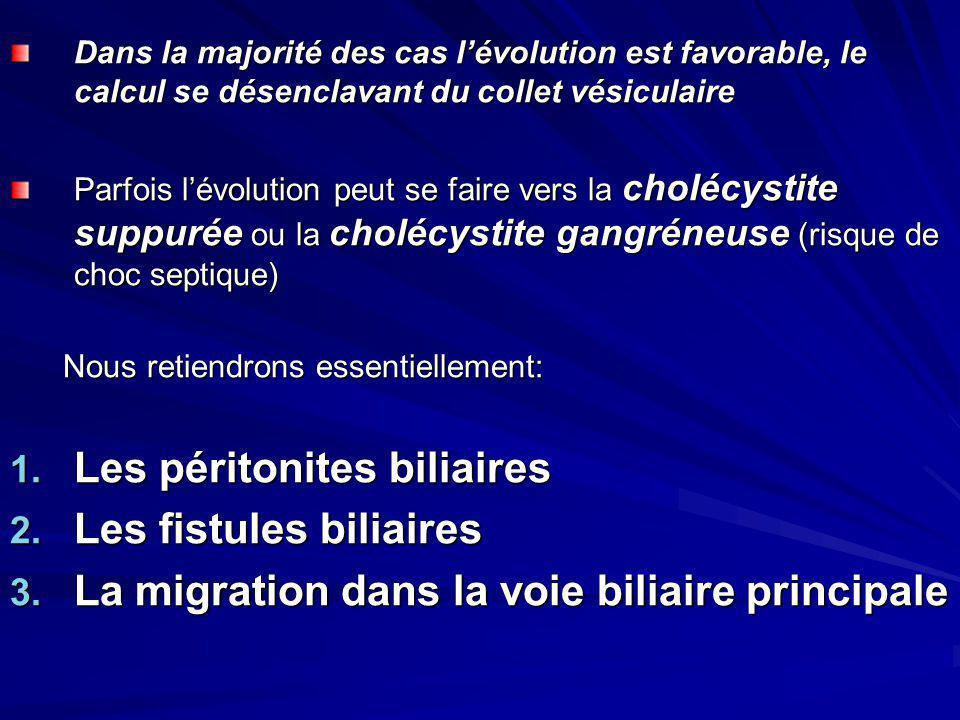 Les péritonites biliaires Les fistules biliaires