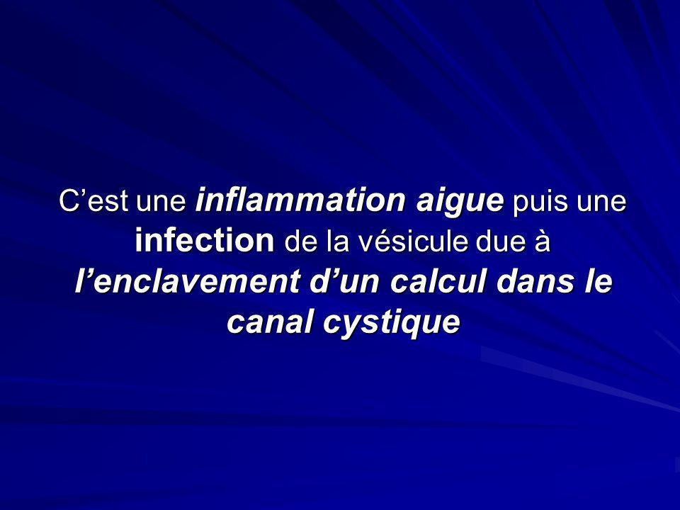 C'est une inflammation aigue puis une infection de la vésicule due à l'enclavement d'un calcul dans le canal cystique