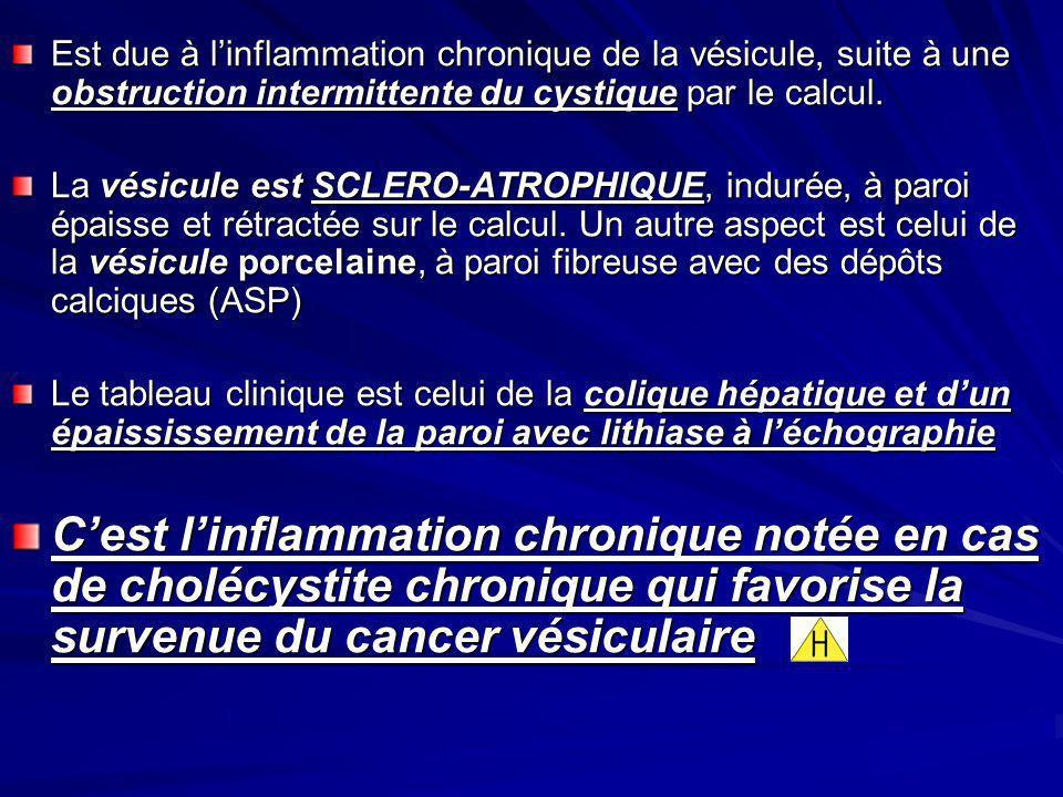 Est due à l'inflammation chronique de la vésicule, suite à une obstruction intermittente du cystique par le calcul.