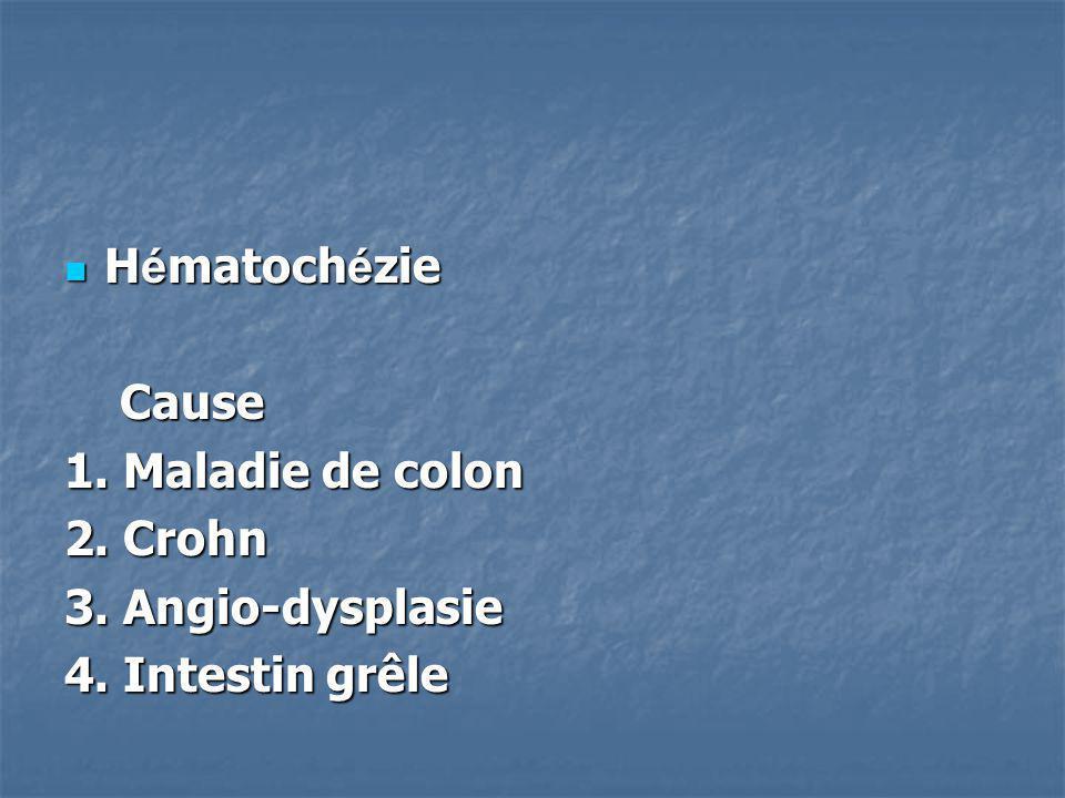 Hématochézie Cause 1. Maladie de colon 2. Crohn 3. Angio-dysplasie 4. Intestin grêle