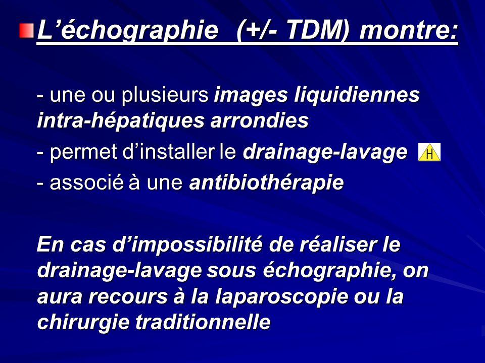 L'échographie (+/- TDM) montre: