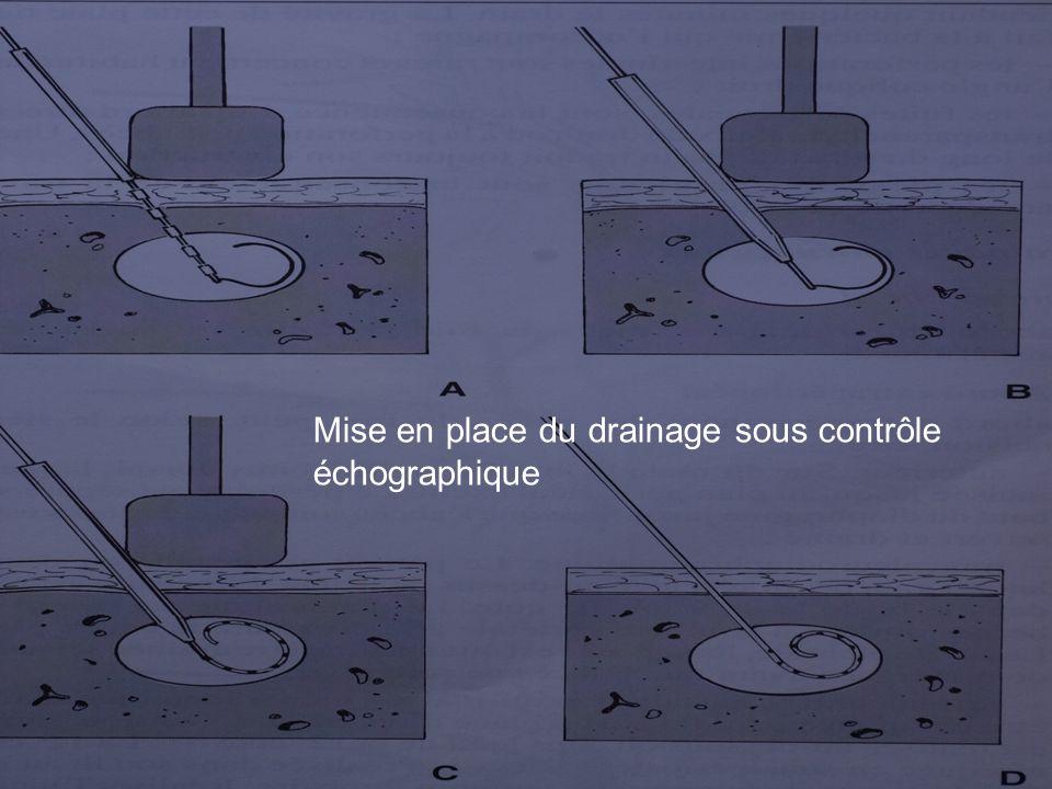 Mise en place du drainage sous contrôle échographique