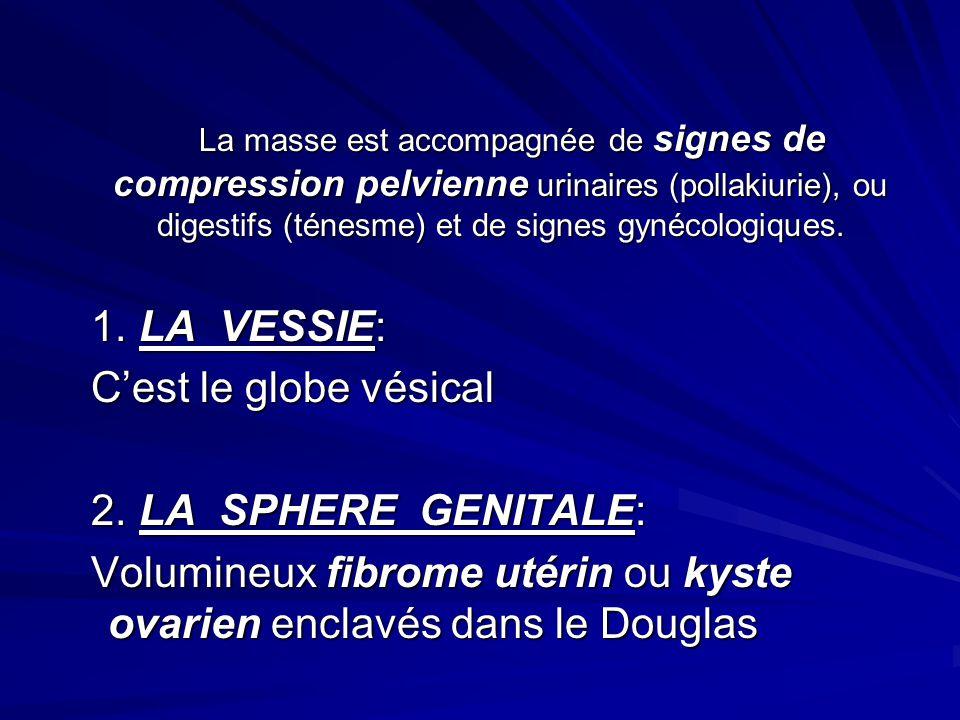 Volumineux fibrome utérin ou kyste ovarien enclavés dans le Douglas