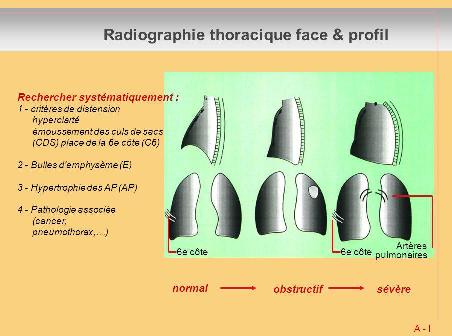 Radiographie thoracique face & profil