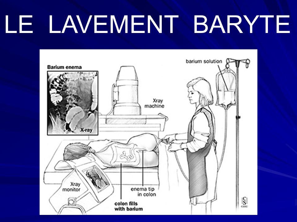 LE LAVEMENT BARYTE