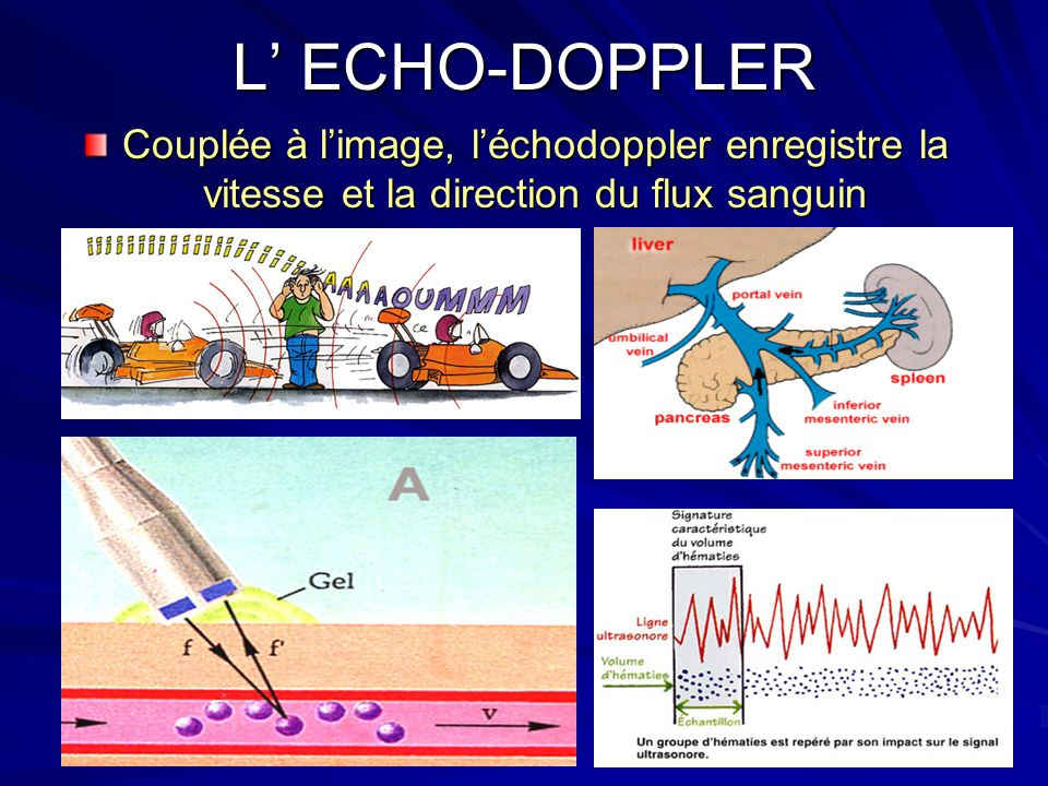 L' ECHO-DOPPLER Couplée à l'image, l'échodoppler enregistre la vitesse et la direction du flux sanguin.