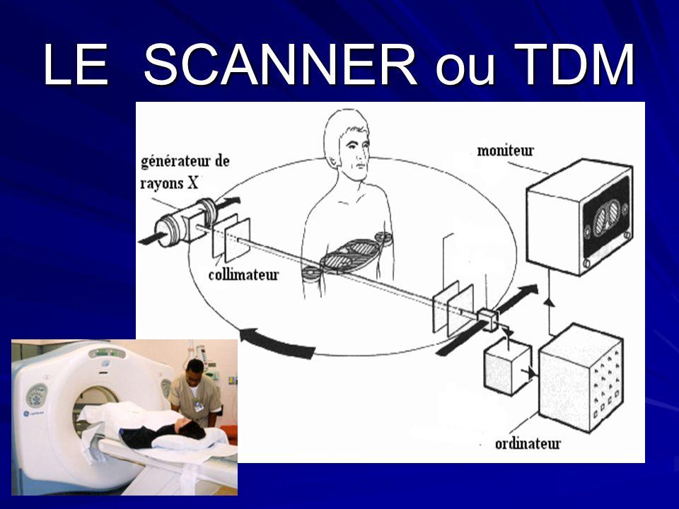 LE SCANNER ou TDM