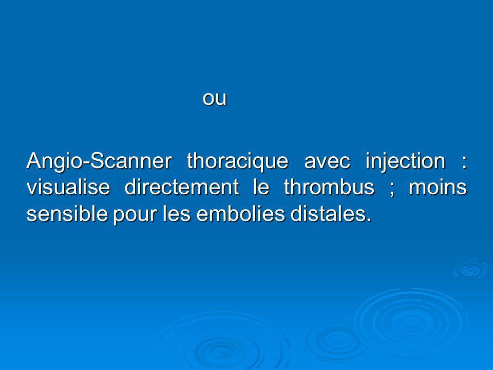 ou Angio-Scanner thoracique avec injection : visualise directement le thrombus ; moins sensible pour les embolies distales.
