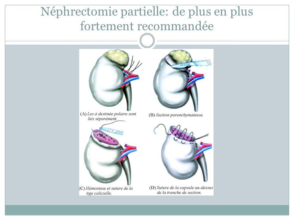 Néphrectomie partielle: de plus en plus fortement recommandée