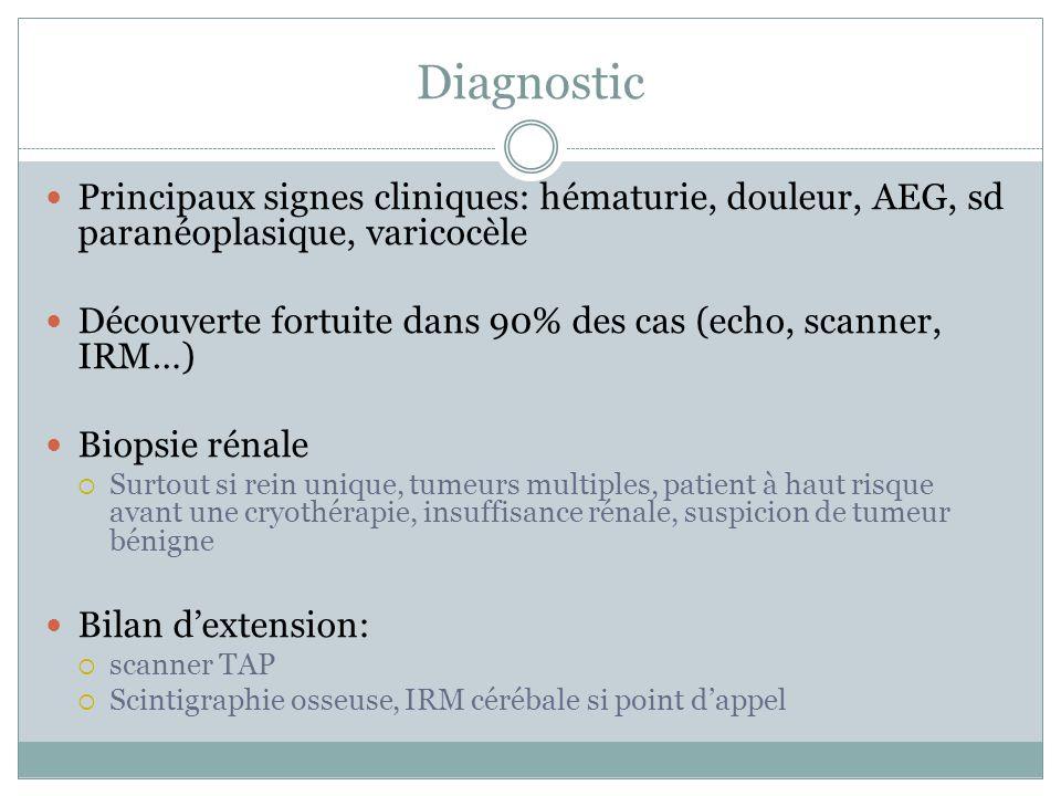 Diagnostic Principaux signes cliniques: hématurie, douleur, AEG, sd paranéoplasique, varicocèle.