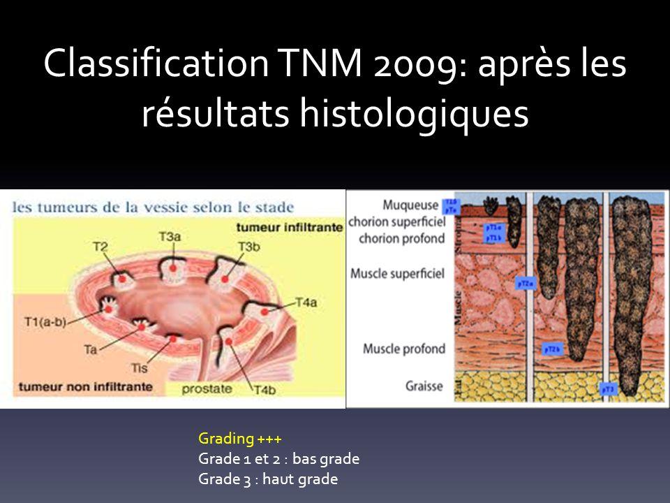Classification TNM 2009: après les résultats histologiques