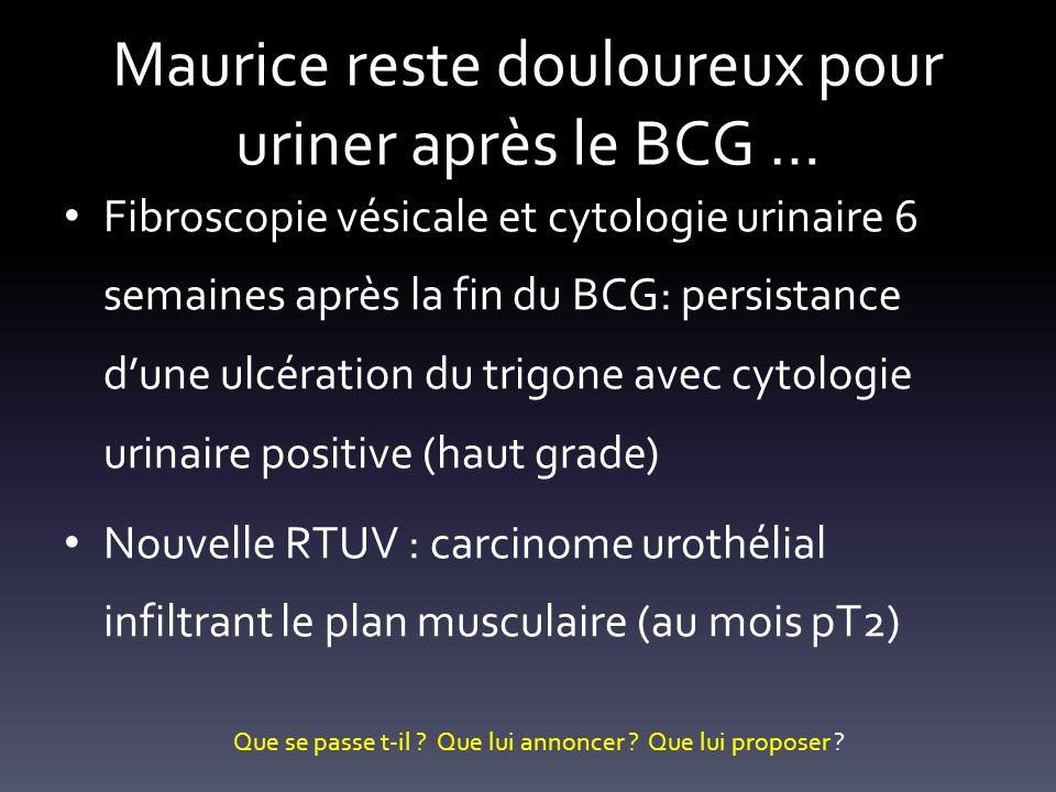 Maurice reste douloureux pour uriner après le BCG …