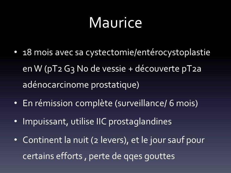 Maurice 18 mois avec sa cystectomie/entérocystoplastie en W (pT2 G3 N0 de vessie + découverte pT2a adénocarcinome prostatique)