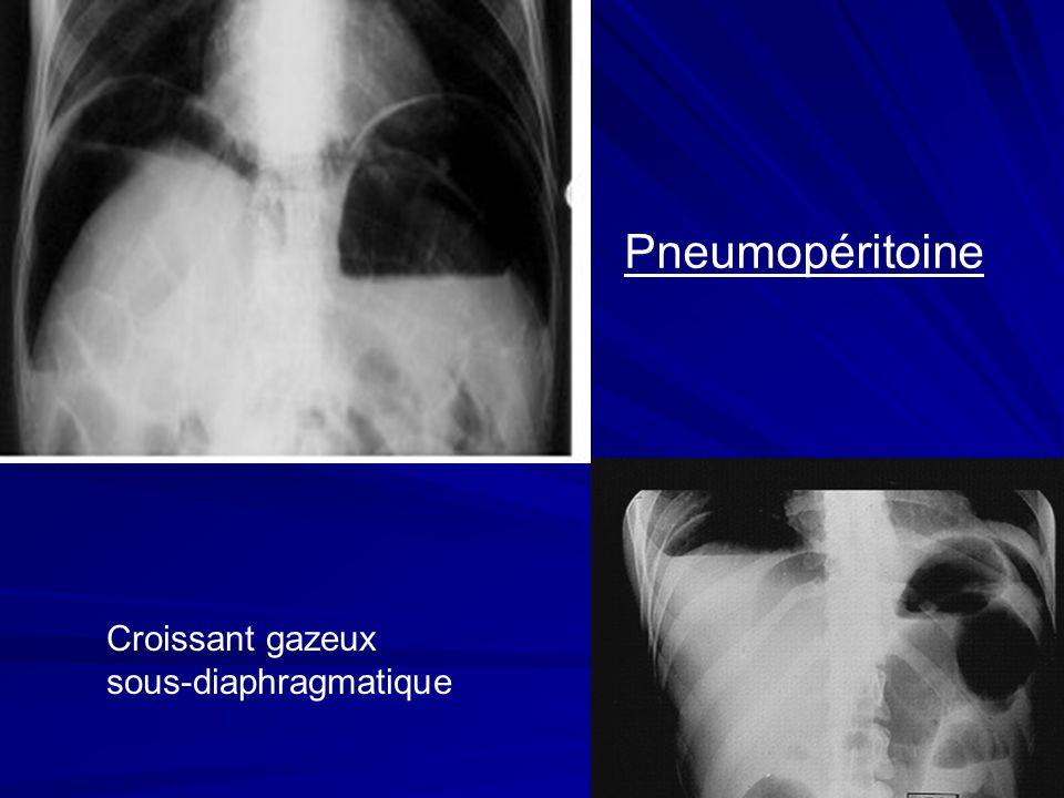 Pneumopéritoine Croissant gazeux sous-diaphragmatique