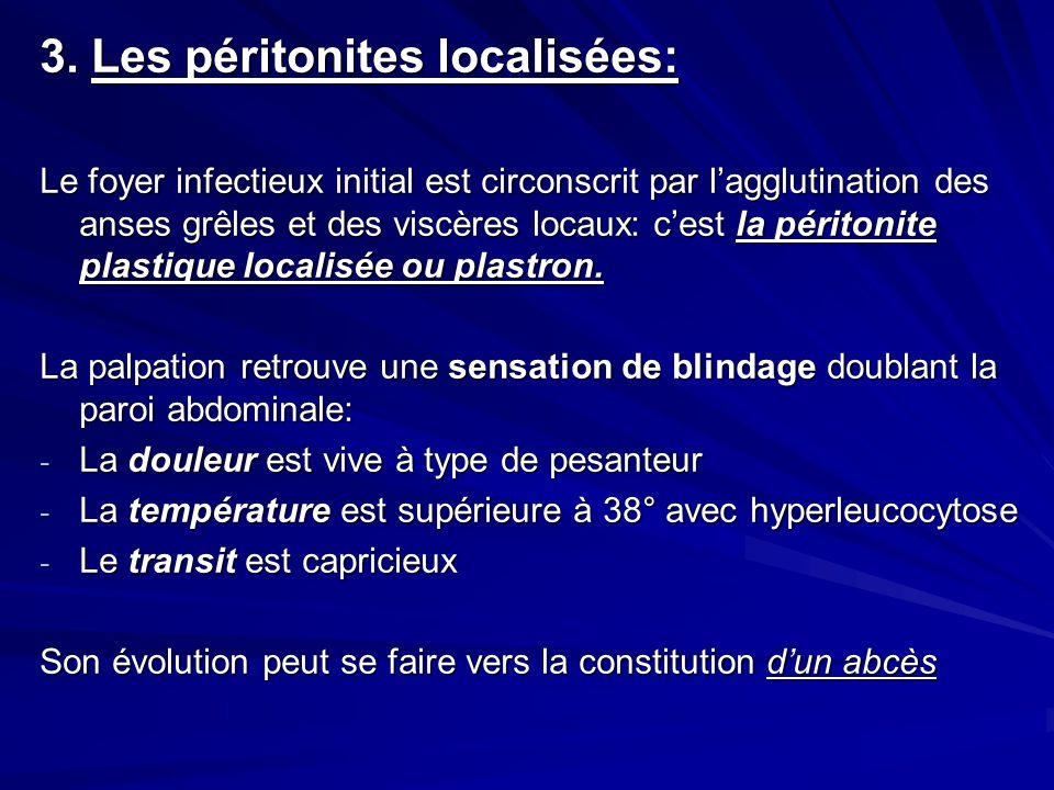 3. Les péritonites localisées:
