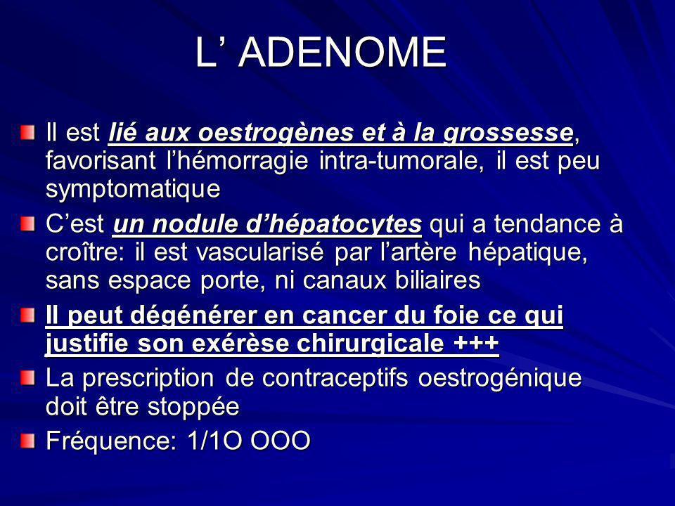 L' ADENOME Il est lié aux oestrogènes et à la grossesse, favorisant l'hémorragie intra-tumorale, il est peu symptomatique.
