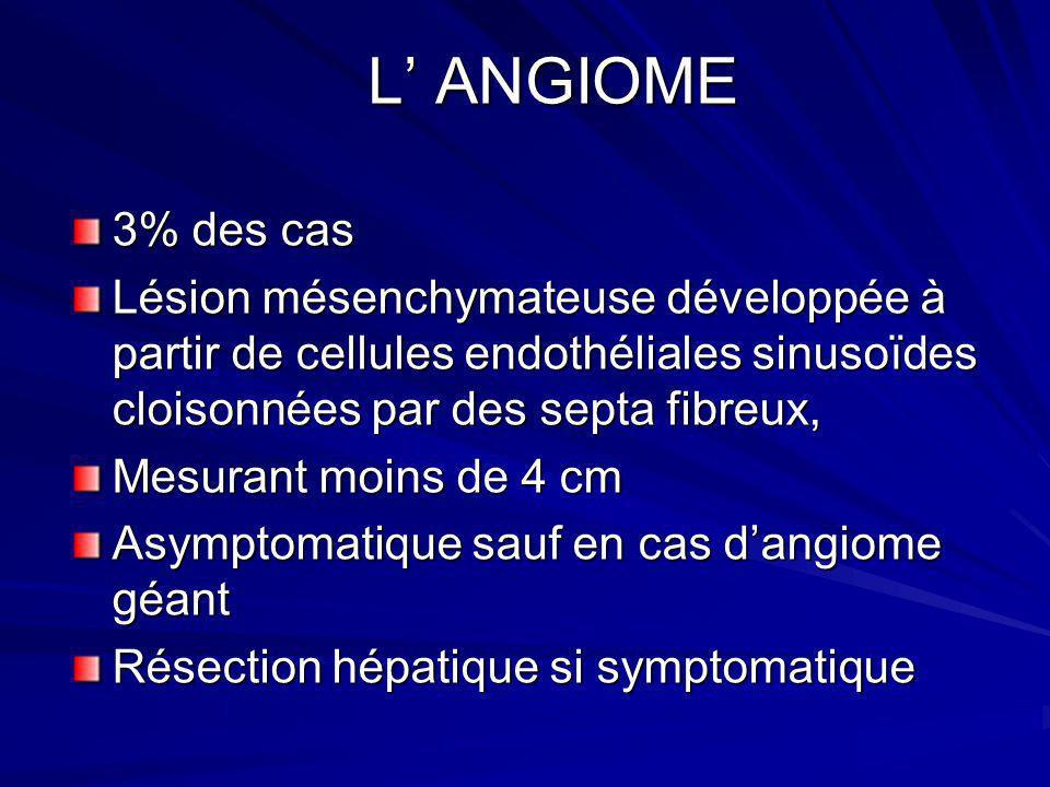 L' ANGIOME 3% des cas. Lésion mésenchymateuse développée à partir de cellules endothéliales sinusoïdes cloisonnées par des septa fibreux,