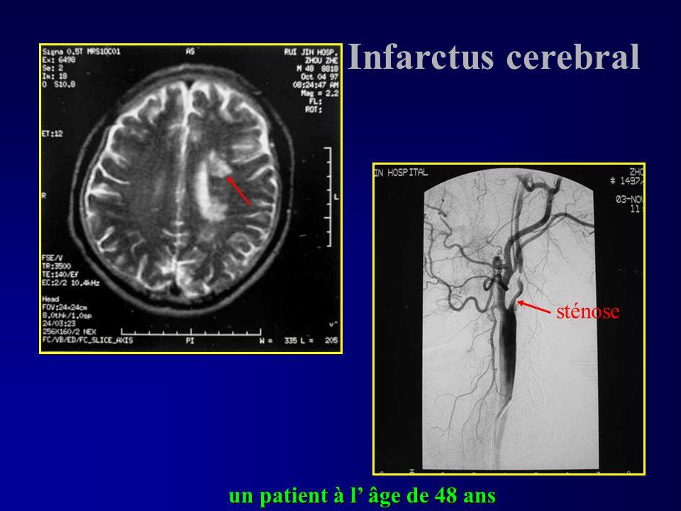 Infarctus cerebral sténose un patient à l' âge de 48 ans